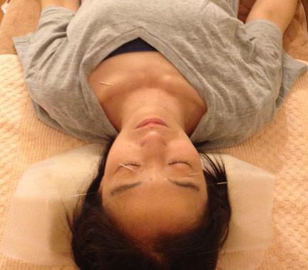 鍼灸 post thumbnail image